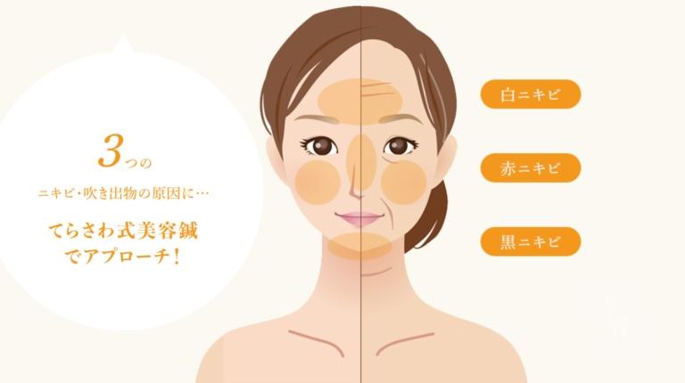 3つのニキビ・吹き出物の原因にてらさわ式美容鍼でアプローチ