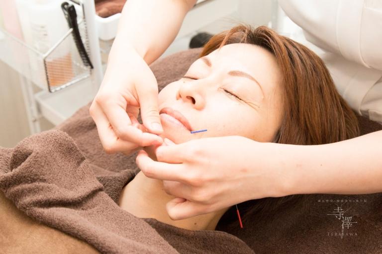 神戸・京都・東大阪など遠方から美容鍼にお越しくださいます